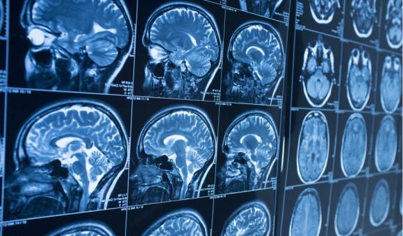 Les recherches d'Emmanuelle Wilhelm se concentrent sur le cerveau ©UCL